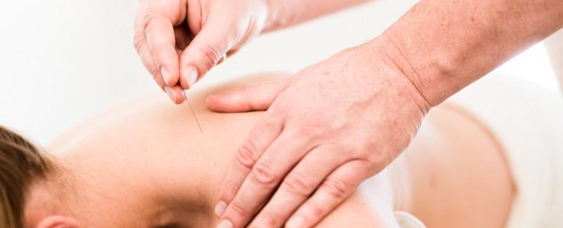 Akupunktur