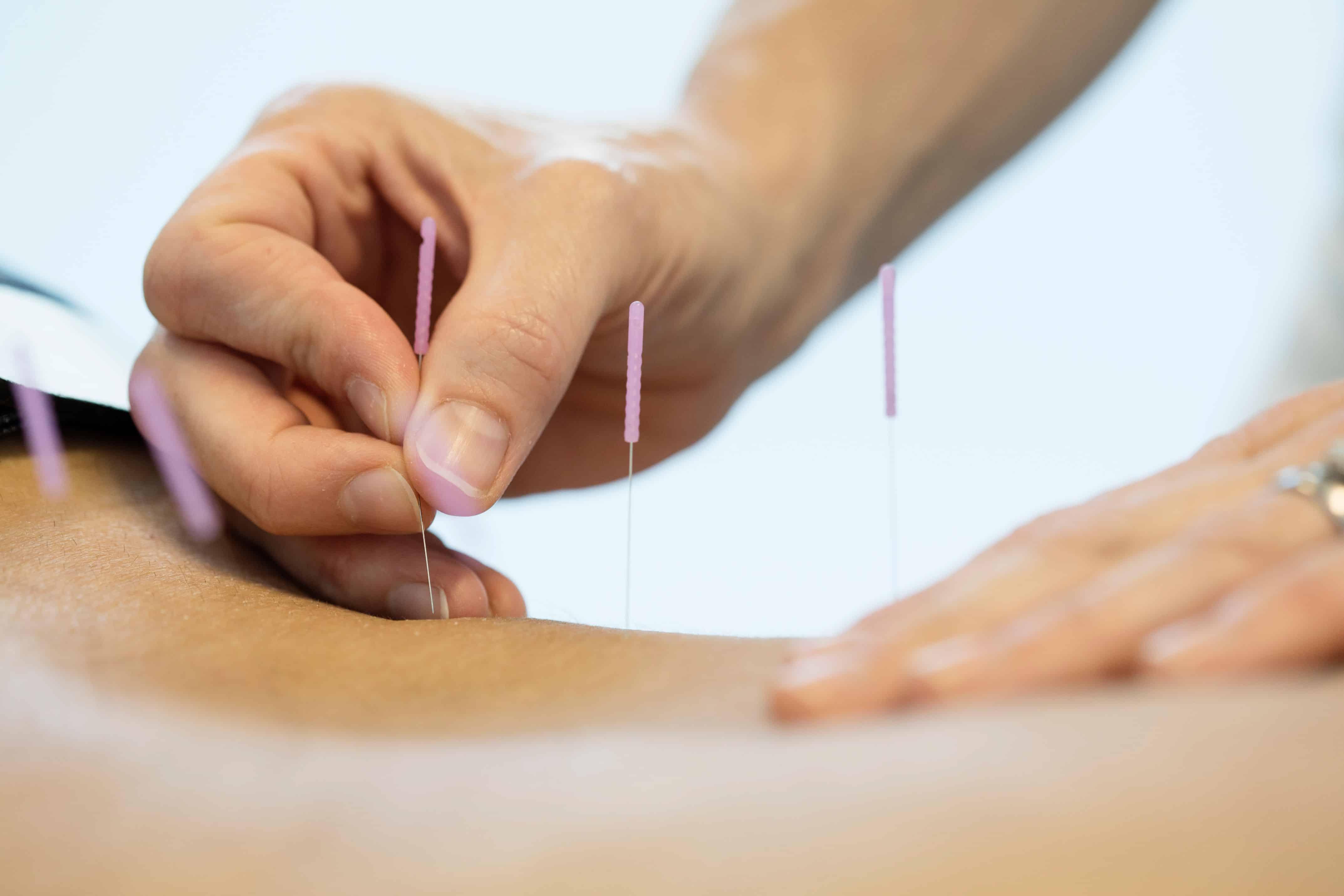 Akupunktur på Majorstuen