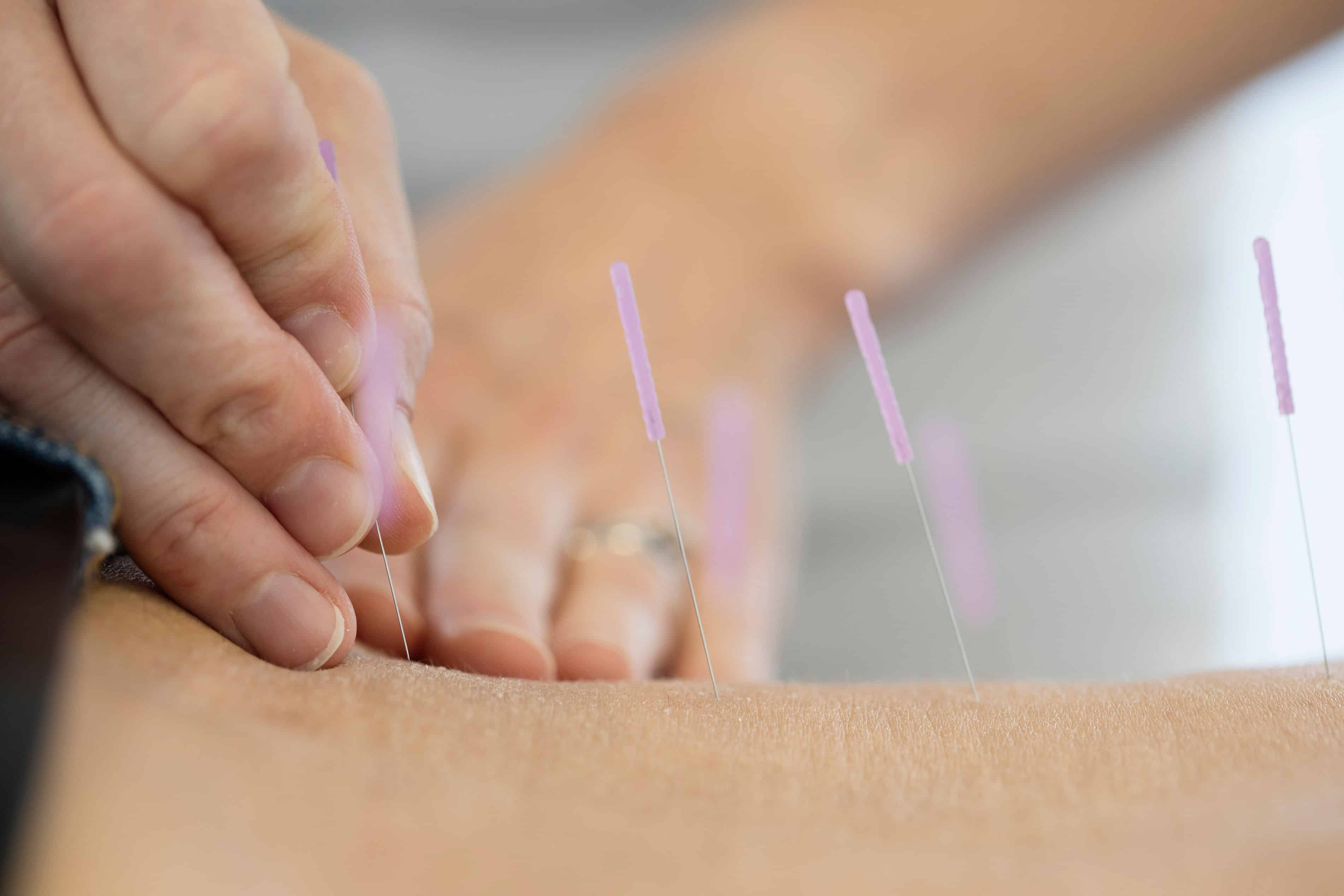 Akupunktur på Drammen